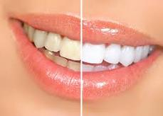 ctn-prowhite-before-after